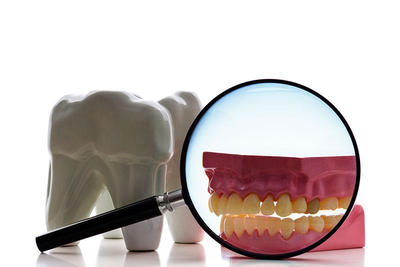 Root Canal - Roxana R. Sayah, DDS, Los Angeles Dentist
